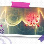 سرطان پستان چیست؟